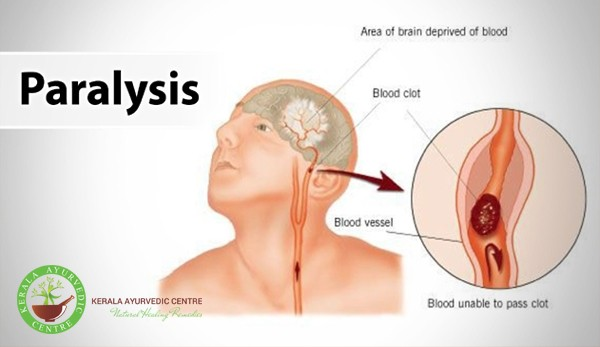 What is Paralysis ? Paralysis Treatment With Ayurveda in Dubai.